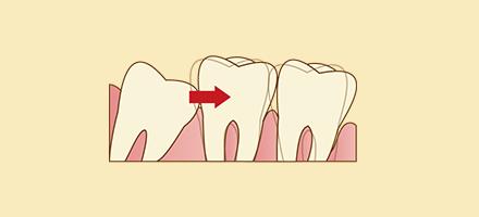 歯並びを悪化